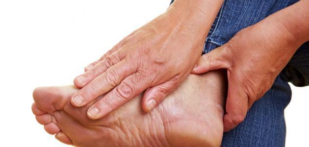 صورة اسباب الم باطن القدم , الاسباب والعلاج وسبل الوقاية منه