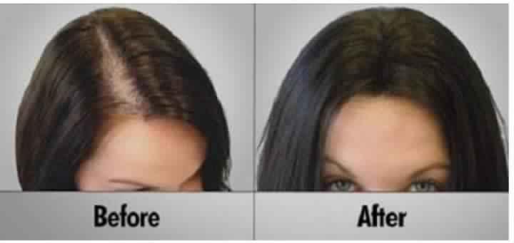 صورة علاج الشعر بالبلازما , من النهاردة مفيش قلق تعالي بسرعة لعلاج تساقط الشعر