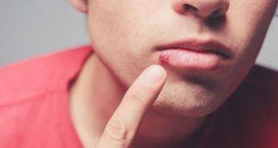 اعراض الايدز الاولية عند الرجال , الاعراض المصاحبه للايذر عند الرجال