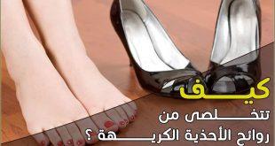 طريقة التخلص من رائحة الحذاء , بمكون واحد اقضى على رائحه الحذاء