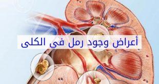 صورة اعراض رمل الكلى , رمل وحصوات الكلى واعراضها