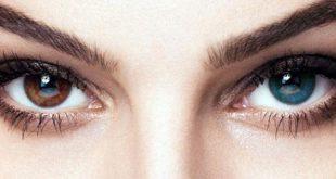 صورة تغيير لون العين طبيعيا , تغييرات لون العينين