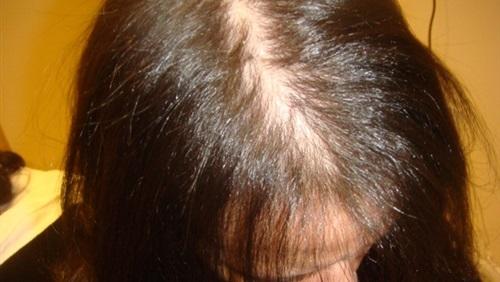 صورة الغدة الدرقية وتساقط الشعر , اسباب مرض الغده الدراقيه مع الشعر