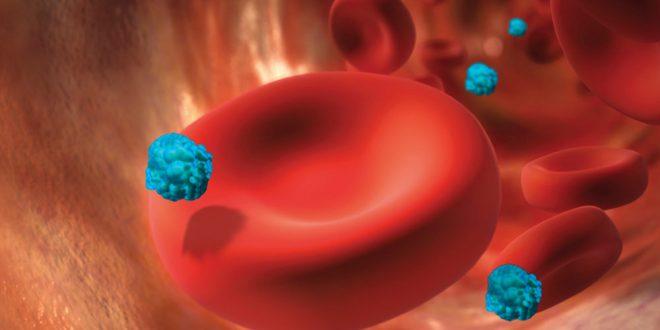 صور اعراض انتشار السرطان في الجسم , اخطر اعراض السرطان في الجسم