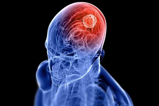 صورة اعراض سرطان الراس المبكرة , اخطار واعراض سرطان الراس المبكر