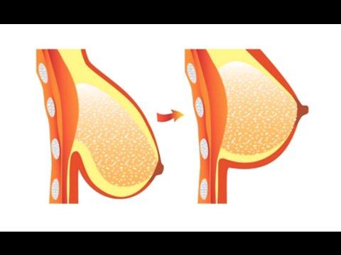 صورة عملية شد الصدر , فوائد واضرار عمليات شد الصدر