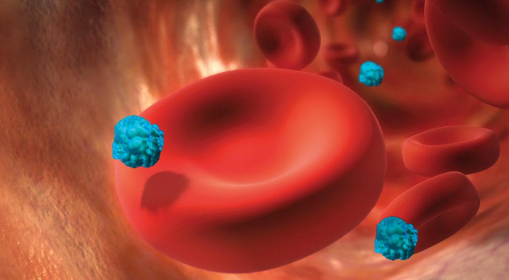 صورة صور عن السرطان , اغرب مناظر صور خلايا السرطان
