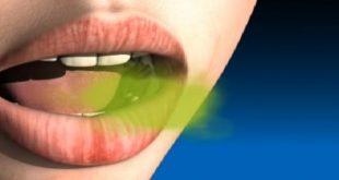 اسباب رائحة الفم الكريهة وعلاجها بابسط الحلول , اهم اسباب رائحة الفم