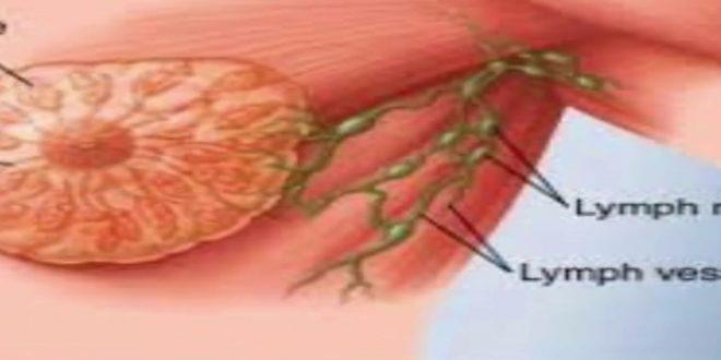 صور اعراض امراض الثدي بالصور , كيف تكتشقي انكي مصابه بسرطان الثدي