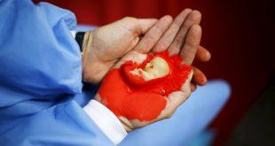 صورة علامات الاجهاض المبكر , الاعراض التي تظهر في مرحلة الاجهاض الاولية