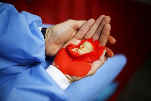 صور علامات الاجهاض المبكر , الاعراض التي تظهر في مرحلة الاجهاض الاولية