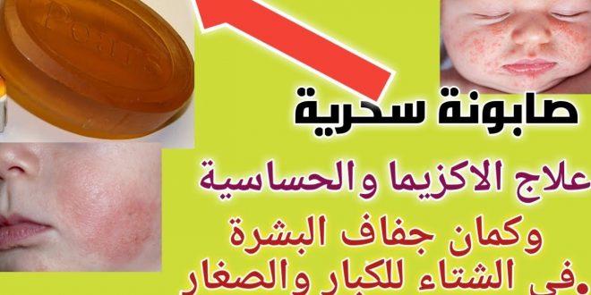 صور علاج اكزيما الوجه , اهراض وعلامات وعلاج اكزيما جلد الوجه