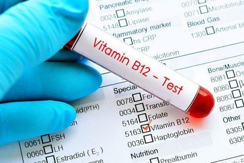 صورة اعراض نقص ب12 , علامات تظهر على جسم الانسان عند نقص وجود فيتامينات ب12
