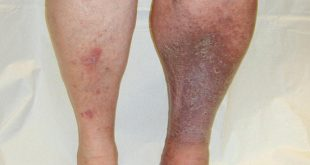 صور اعراض الجلطة في القدم , ازاي تعرف ان عندك جلطة في الرجل من الاعراض