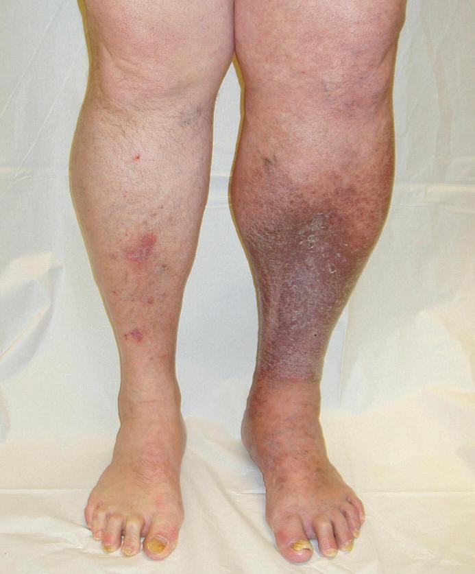 صورة اعراض الجلطة في القدم , ازاي تعرف ان عندك جلطة في الرجل من الاعراض
