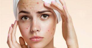 علاج حب الشباب في الوجه , تخلص من حب الشباب المزعج