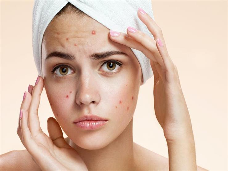 صورة علاج حب الشباب في الوجه , تخلص من حب الشباب المزعج