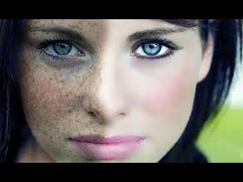 صورة علاج نمش الوجه , طرق بسيطة تقضي نهائيا على مشكلة نمش البشرة