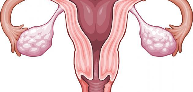 صورة هل تكيس المبايض يمنع الحمل , اسباب تاخير الحمل