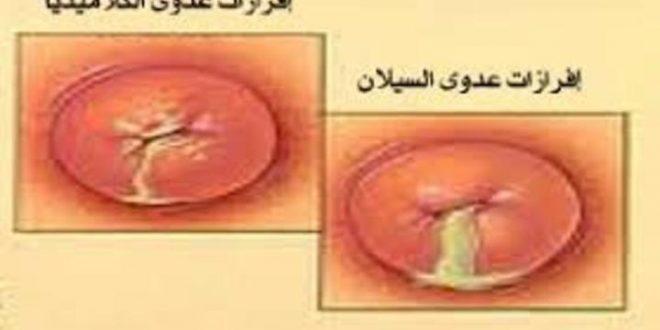 صورة الامراض الجلدية التناسلية عند الرجال بالصور , خطر العدوى بالامراض التناسلية