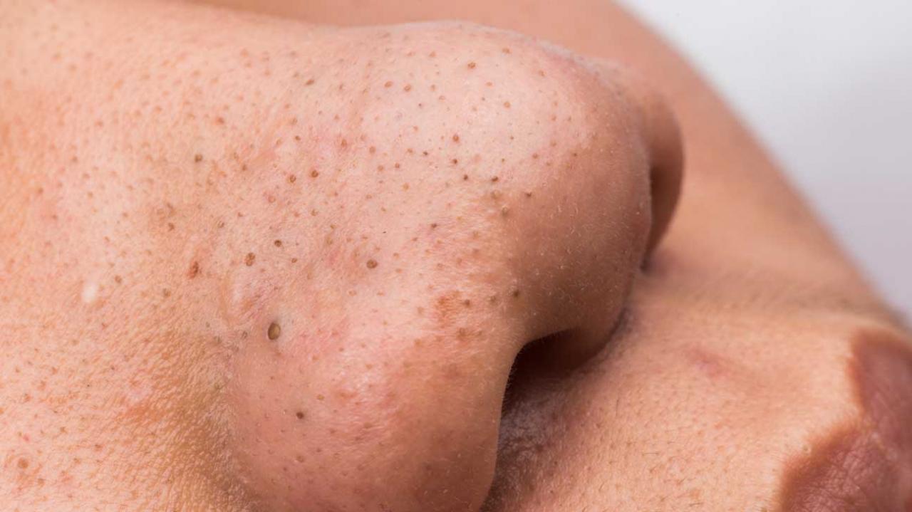 صورة تنظيف الوجه من الرؤوس السوداء , طريقه سهله للتخلص من الرؤس السوداء