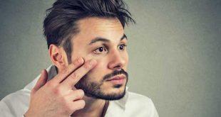 صورة اسباب الهالات السوداء عند الرجال , علامات سوداء اللون حول العينين لدي الشباب