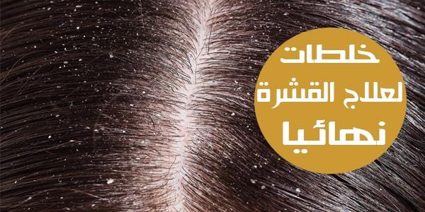 صورة ازالة القشرة من الشعر نهائيا , حلول قاطعة وسريعة للقضاء على قشرة الشعر