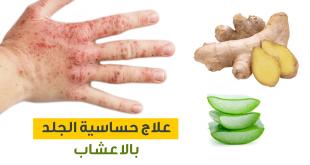 علاج حساسية الجلد بالاعشاب , حلول بالوصفات العشبية للتخلص من الحكة والهرش في الجلد