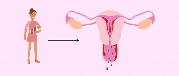 صورة تاخر الدورة الشهرية 10 ايام , تاخر الدورة الشهريه لا يعني الحمل