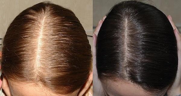صورة وصفة فريدة سيف النصر للشعر , اجعلي شعرك كثيف بهذه الطريقة