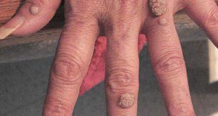 صورة اسباب ظهور الثالول , تعريف مرض الثالول