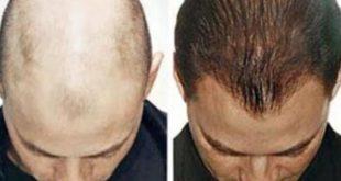 صورة احدث علاج للصلع , انبات الشعر من جديد بعد سقوطه
