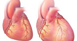 صورة علاج تضخم عضلة القلب بالاعشاب , ما الاسباب والعلاج