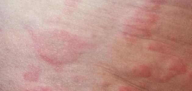 صورة علاج الطفح الجلدي عند الكبار , ما هو الطفح الجلدى
