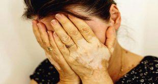 صورة هل مرض البرص معدي , لا تخف من البرص فهو مرض وراثي