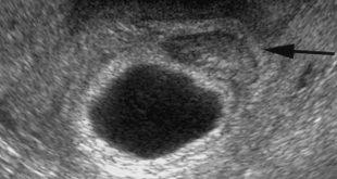 اعراض الحمل بكيس بدون جنين , ماهي اعراض الحمل بكيس بدون جنين