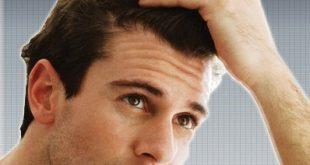 عدد شعر الراس , كم عدد شعر راس الانسان