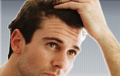 صورة عدد شعر الراس , كم عدد شعر راس الانسان