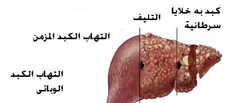 صورة اعراض فيروس الكبد سي , اعراض مرض فيرس سي