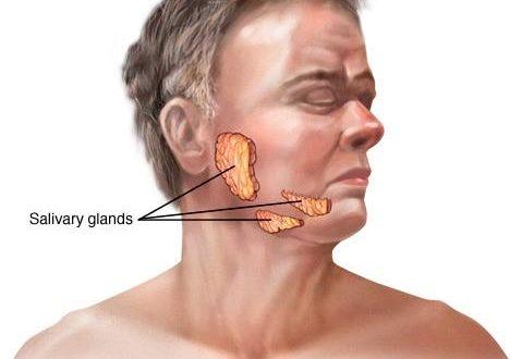 صورة اعراض سرطان الغدد اللعابيه , سرطان الغدد اللعابيه واعراضه