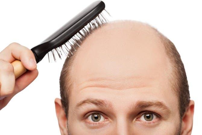صورة تساقط الشعر عند الرجال في سن 18 , اعرف اعراض و علاج الصلع المبكر