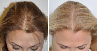 صورة تجارب زراعة الشعر في تركيا , ازرع شعرك و تخلص من الصلع