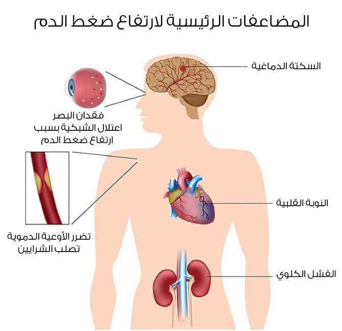 صورة اسباب رفع الضغط , تجنب ارتفاع ضغط الدم