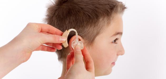 صورة اعراض ضعف السمع عند الاطفال , اكتشفي ضعف سمع ابنك مبكرا