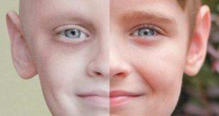 صورة ما اعراض السرطان , انواع الخلايا السرطانيه واعراضها
