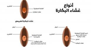 صورة صور غشاء البكارة , انواع غشاء البكارة
