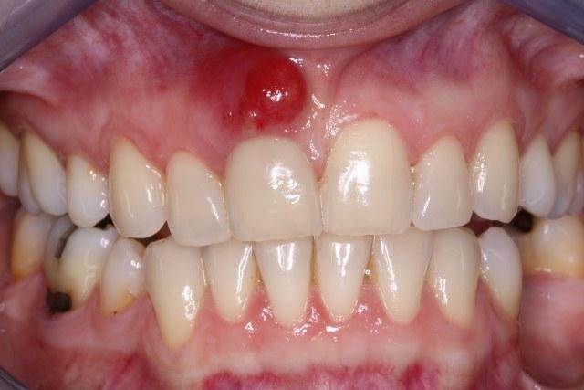 صورة علاج كيس الاسنان بالاعشاب , التخلص من خراج السن بالطب البديل