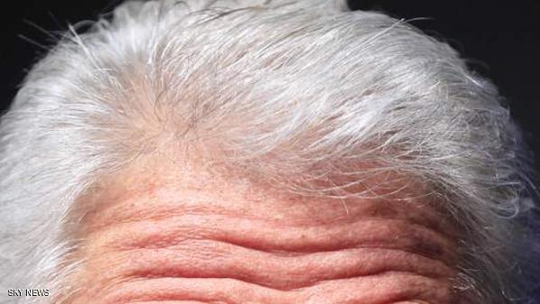 صورة شيب الشعر في المنام , ما دلالات رؤية الشعر الأبيض فى المنام