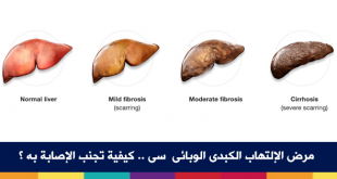 الكبد الوبائي كيف ينتقل , أنواع الفيروس
