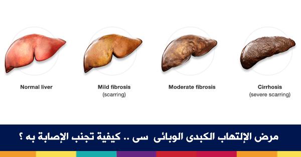 صورة الكبد الوبائي كيف ينتقل , أنواع الفيروس